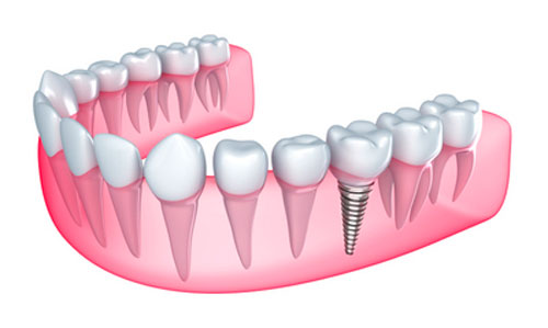 Can Implants Help Improve Gum Health?