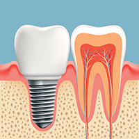 Diagram of dental implant at Cassity & Legacy Implants and Periodontics in South Ogden, UT.