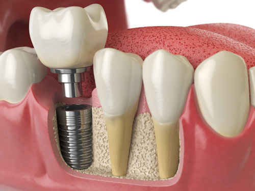 Dental implants offer many benefits, such as the ability replicate the look and function of a real tooth.